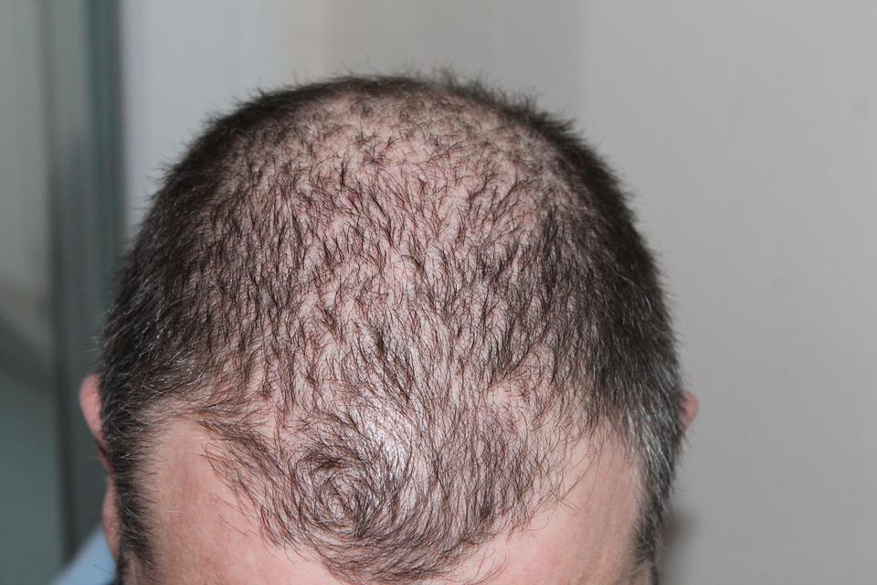 Micropigmentation du cuir chevelu pour homme, qu'est-ce que c'est ?